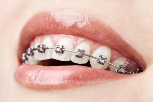 Dental Braces Waterloo for Adults and Kids