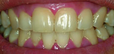 Teeth Whitening in Richmond Hill ON