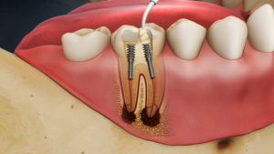 Root Canal Treatment in North York