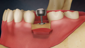Tooth Implants in North York
