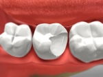 Crown - Restorative Dentistry