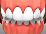 Full Restoration - Cosmetic Dentistry