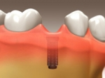 Tooth Implant - Restorative Dentistry