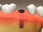 Teeth Implants - Restorative Dentistry