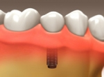 Dental Implants - Restorative Dentistry