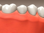Implants - Restorative Dentistry Belmar