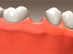 Implants - Restorative Dentistry