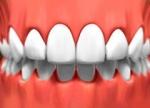 Porcelain Veneers - Cosmetic Dentistry