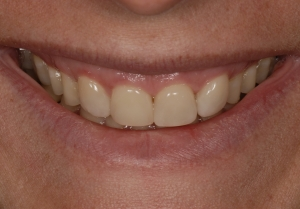 Porcelain Veneers In Newmarket