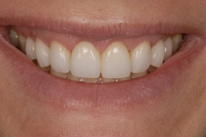 Porcelain Veneers In Newmarket ON