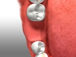 Dental Bridges In Newmarket