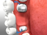 Dental Bridges In Newmarket ON