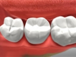 Dental Crown Newmarket ON