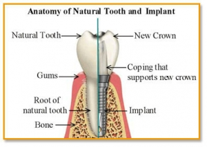 Dental Implants In Newmarket