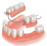 Dentures In Newmarket ON