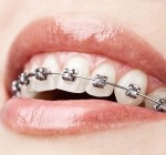 Orthodontics dentist in Halifax