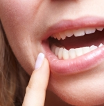 Emergency dentist in Halifax - Abcessed Tooth