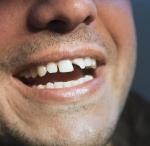 Emergency dentist in Halifax - Fractured Tooth