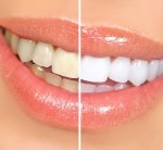 Teeth whitening in Halifax