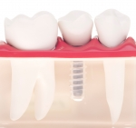 Dental implants in Halifax