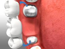 bridges beign placed on teeth