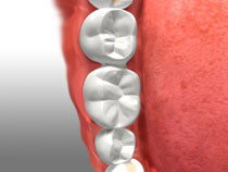 teeth with bridge placed
