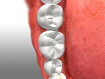 teeth with bridge placed