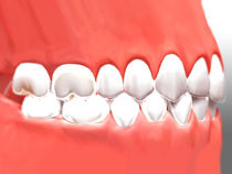 image of mouth from the side with invisible braces placed on the bottom row of teeth