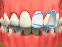image of tooth with porcelain veneer being placed on tooth