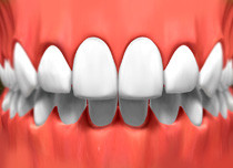 image of mouth with porcelain veneer blended in