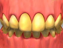 Image of yellow teeth with gums