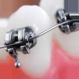 Dentist in Ottawa ON