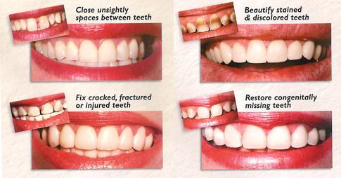 broken tooth temporary treatment