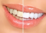 dentist in kitchener cosmetic dentistry