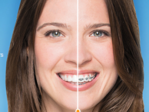 Invisalign Invisible Braces Long Island City