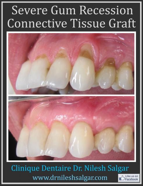 Gum Graft Cost 207 kb Jpeg Gum Graft