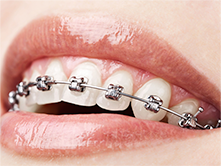 Guelph Orthodontics