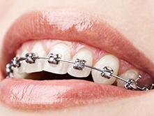 Guelph Orthodontics