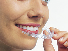 Guelph Dentist - Invisalign
