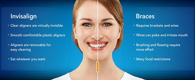 Invisalign® Invisible Braces Guelph