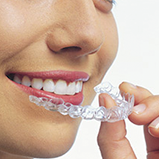 Guelph Cosmetic Dentist
