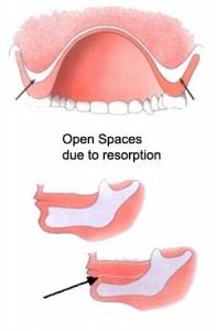 Denture Relines in Ottawa