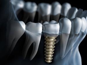 dentures pei